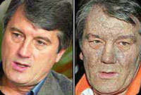 Yushchenko before and after poisoning. Source: presstv.ir